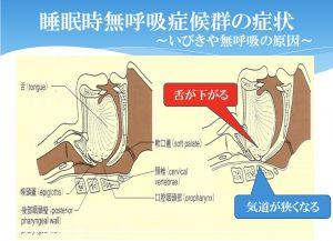 睡眠時無呼吸症候群の症状 図表